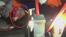 孩子手掌被卷进压面机 消防紧急救援